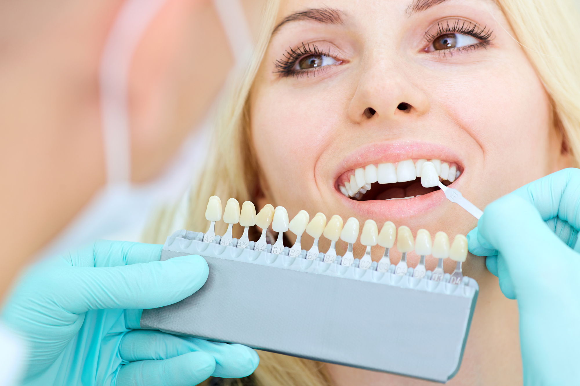 Dental Procedures
